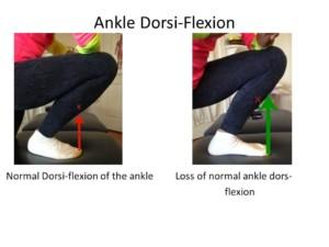 Ankle Dorsi-Flexion