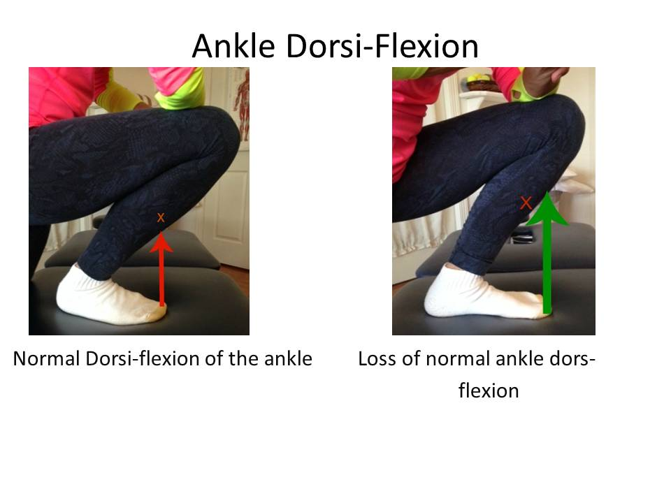 Integrative physical therapy services bellingham test your ankle