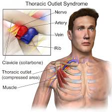 thoracic-inlet